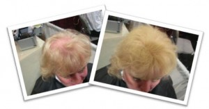 Blonde Hair Before & After