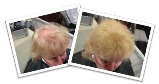 Light Blonde Hair Before & After
