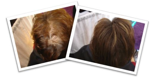 Medium Brown Hair Before & After